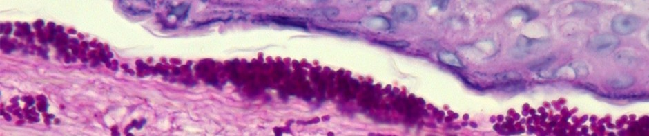 Larutan Fiksatif Pilihan untuk Histopatologi